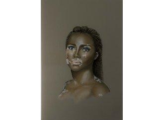 Vitiligo hommage